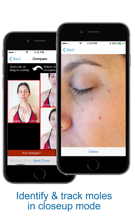 Identify & Track Moles in Close Up Mode - skin mapping with Compariskin